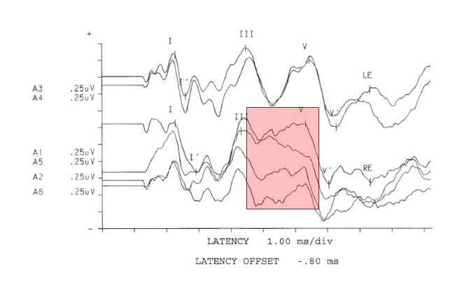 Figure 1. Neurodignostic click (80 db nHL) auditory brainstem response