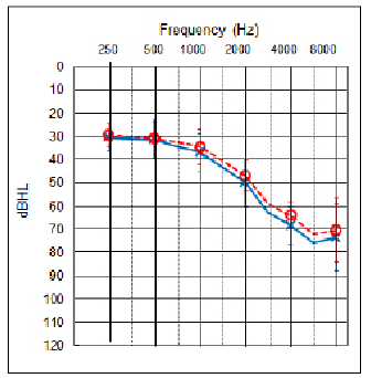 Figure 1. The average audiogram for the 10 subjects, with the standard deviations shown as the vertical bars at the respective audiometric frequencies.