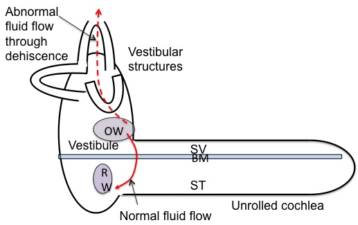 Superior Semicircular Canal Dehiscence | Canadian Audiologist