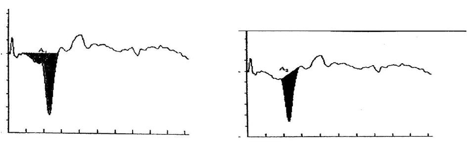 Figure 5_958